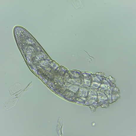 Face mite: Demodex folliculorum