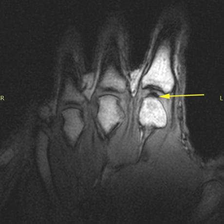 MRI of knuckle
